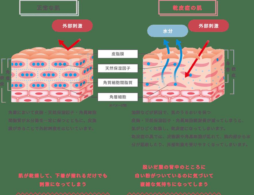 正常な肌:角層において皮脂・天然保湿因子・角質細胞間脂質が水分量を一定に保つとともに、皮脂膜があることで外的刺激をはじいています。乾皮症の肌:加齢などが原因で、肌のうるおいを保つ皮脂・天然保湿因子・角質細胞間脂質が減ってしまうと、肌がひどく乾燥し、乾皮症になってしまいます。乾皮症の肌では、皮脂膜や角層細胞が乱れて、肌内部から水分が蒸散したり、外部刺激を受けやすくなってしまいます。 肌が乾燥して、下着が擦れるだけでも刺激になってしまう 脱いだ服の背中のところに白い粉がついているのに気づいて複雑な気持ちになってしまう